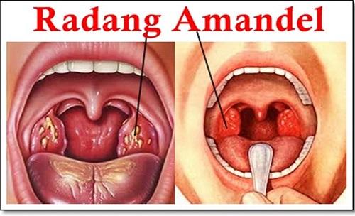 Radang Amandel