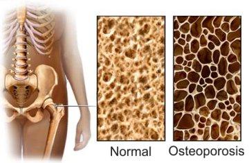 perbedaan tulang yang sudah keropos dan yang masih normal